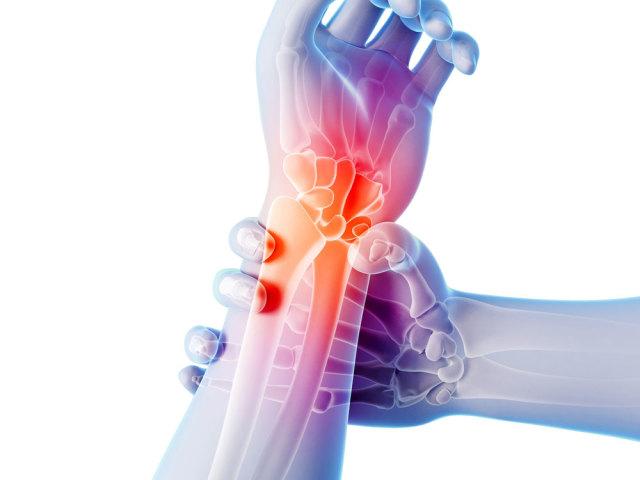 Артрит і артроз суглобів: лікування медичними препаратами, травами, народними засобами, вправами, масажем, компресами, дієтою, профілактика. Який лікар лікує артрит і артроз суглобів?