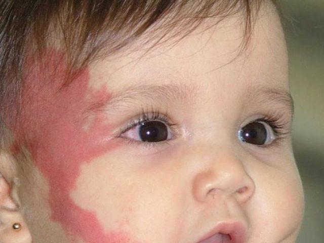 Укус лелеки — родима пляма у новонародженого: народні прикмети. Укус лелеки — що робити?