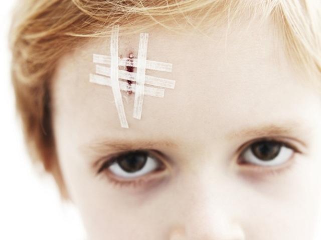 Дитина постійно здирає скоринку від рани: причини — що робити?