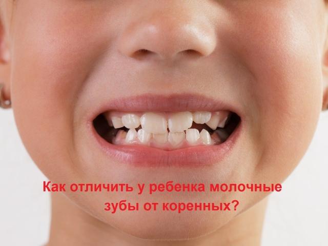Як відрізнити молочний зуб від корінного: фото з поясненнями. Зуб мудрості — корінний або молочний? Всі молочні зуби змінюються на корінні? Які існують проблеми, пов'язані зі зміною молочного зуба на корінний: коли робиться рентгенографія?