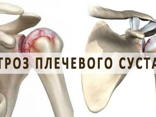 Артроз плечового суглоба: симптоми і лікування, профілактика. Як і чим лікувати артроз плечового суглоба: список препаратів, медикаментозне лікування, гімнастика