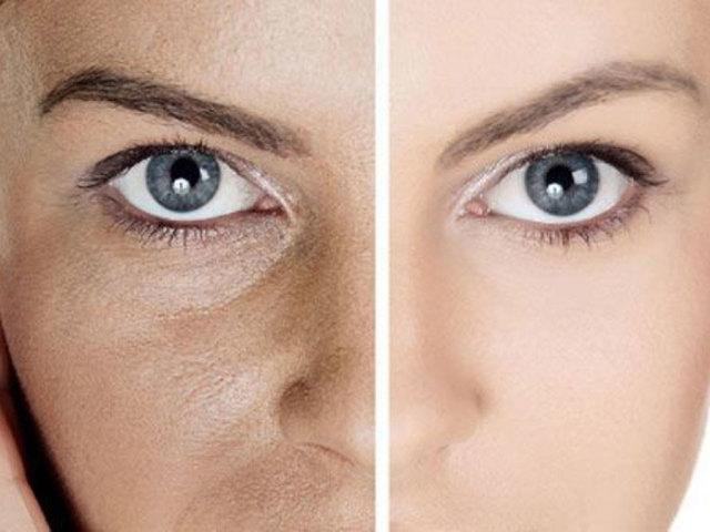 Пори на обличчі: як розпарити пори на носі в домашніх умовах? Як розширити пори, як звузити пори: поради, рекомендації. Домашня кріотерапія для звуження пор: опис, поради. Як очистити пори на обличчі: маски, скраби, салонні процедури