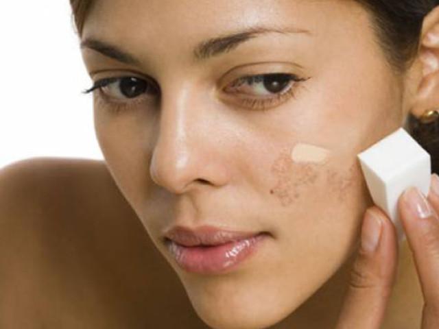 Пігментні плями на обличчі — як замаскувати? Чому з'являються пігментні плями на обличчі і як від них позбутися?