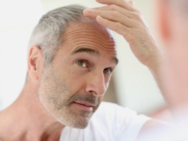 Чому випадає волосся у чоловіків і що з цим робити? Перші ознаки облисіння у чоловіків — як розпізнати? Як відновити волосся чоловікові при облисінні?
