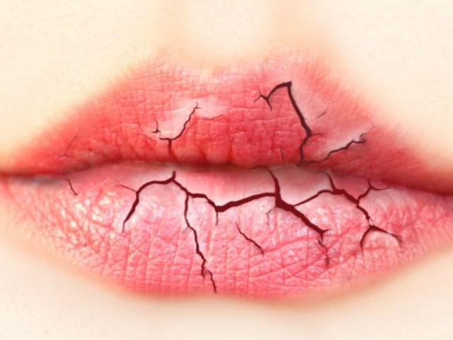Чому губи сохнуть, лущаться і тріскаються у жінок, чоловіків, дітей, при вагітності, після 40 років: причини, що робити, чим мазати, щоб губи не сохли? Якщо сохнуть губи постійно, ознака якогось захворювання, яких вітамінів не вистачає?
