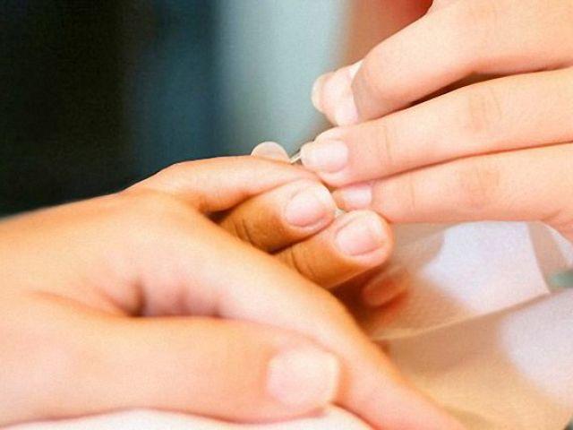 Заноза на пальці під нігтем: що робити, як дістати? Як з під нігтя витягнути скалку: стару металеву, від скла, кактуса, якщо вона глибоко?