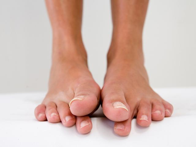 Що таке дике м'ясо біля нігтя на руці і нозі? Як лікувати дике м'ясо на нігтів народними засобами, чистотілом, лазером?