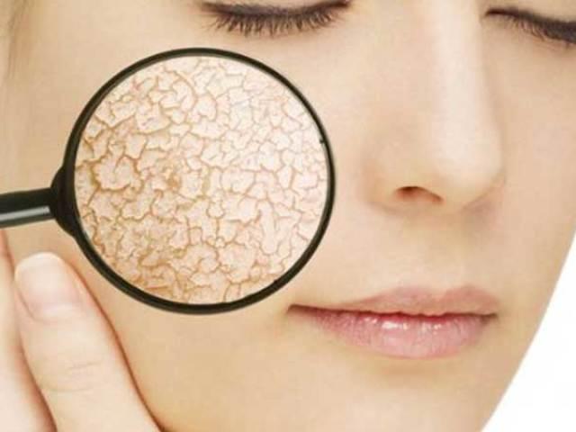 Домашні маски для сухої і чутливої шкіри обличчя: живильні, зволожуючі, підтягують, заспокійливі і від зморшок