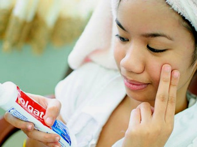 Допомагає зубна паста від прищів на обличчі? Як прибрати, підсушити прищі і почервоніння з допомогою зубної пасти: поради, протипоказання, ефект, відгуки. Сода і зубна паста від прищів – рецепт маски: як правильно наносити, скільки тримати?