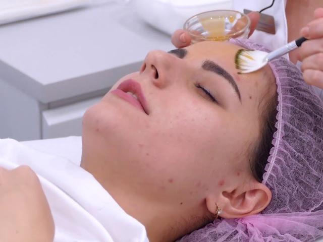 Причини появи вугрів і прищів на обличчі — як позбутися прищів за допомогою масок і мазей: поради дерматолога