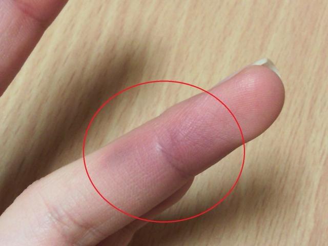 Що робити якщо прищемив палець посинів ніготь? Дитина прищемив палець дверима, що робити? Перша допомога та народні рецепти при ударі пальця