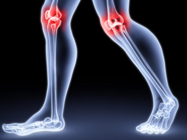 Артрит і артроз: в чому різниця, що гірше? Перші ознаки та симптоми артриту та артрозу, діагностика: опис. Який лікар лікує артрит і артроз суглобів?