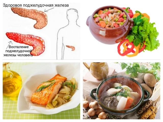 Дієта при панкреатиті підшлункової залози: приблизне меню, дозволені продукти, рецепти. Дієта при гострому панкреатиті підшлункової залози