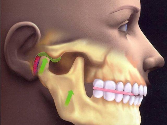 Захворювання, патологія, дисфункція скроневого нижньощелепного суглоба: причини, симптоми, діагностика, лікування