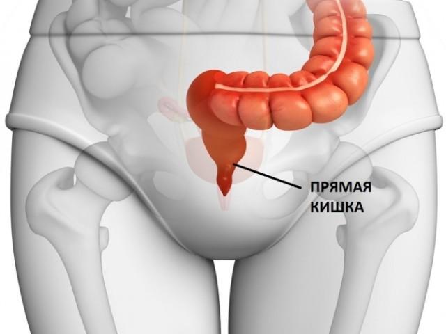 Рак прямої кишки: симптоми і причини, стадії, діагностика, лікування, прогноз
