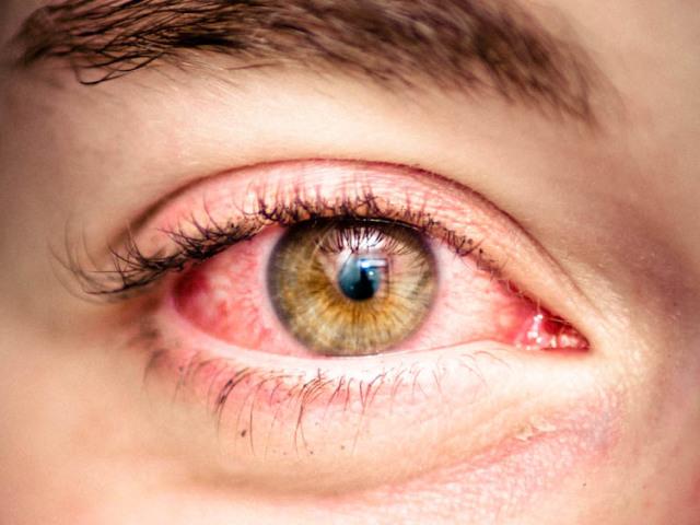 Що буде, якщо піднести до ока пилосос? Можна висмоктати очей пилососом?