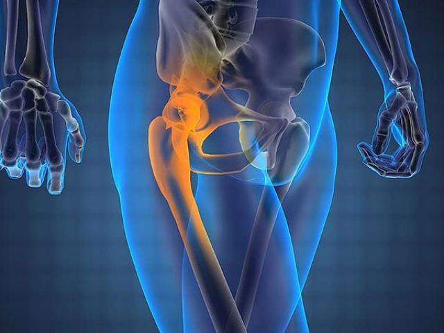 Асептичний некроз головки стегнової кістки: причини, симптоми, діагностика, лікування