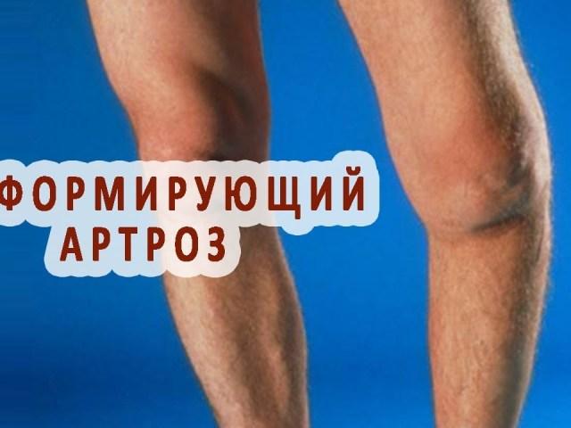 Деформуючий артроз колінного суглоба: симптоми, причини, методи медикаментозного лікування. Що таке деформуючий артроз колінного суглоба?