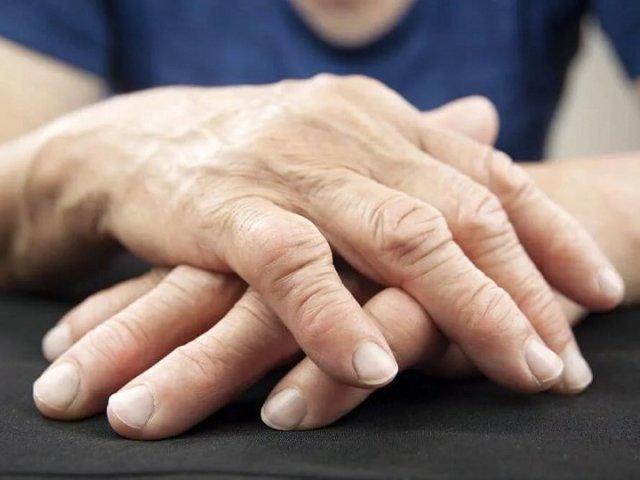 Болі в суглобах рук і ніг: причини, медикаментозне лікування, лікування народними засобами, профілактика