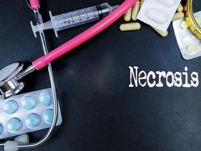 Некроз кульшового суглоба: симптоми, стадії, причини появи, види діагностики та способи лікування захворювання