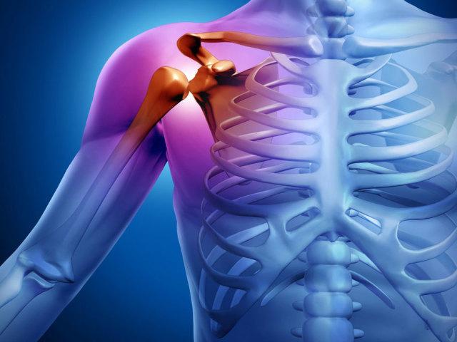 Плексит плечового суглоба: причина виникнення захворювання, симптоми, медикаментозне і народне лікування