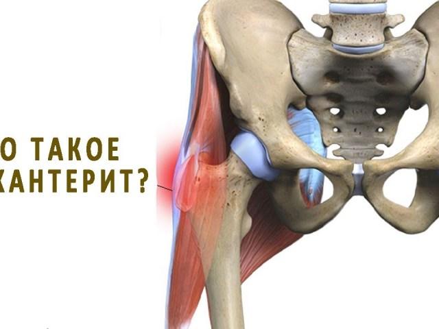 Трохантерит кульшового суглоба: різновиди, симптоми, діагностика і лікування медикаментозно, народними засобами