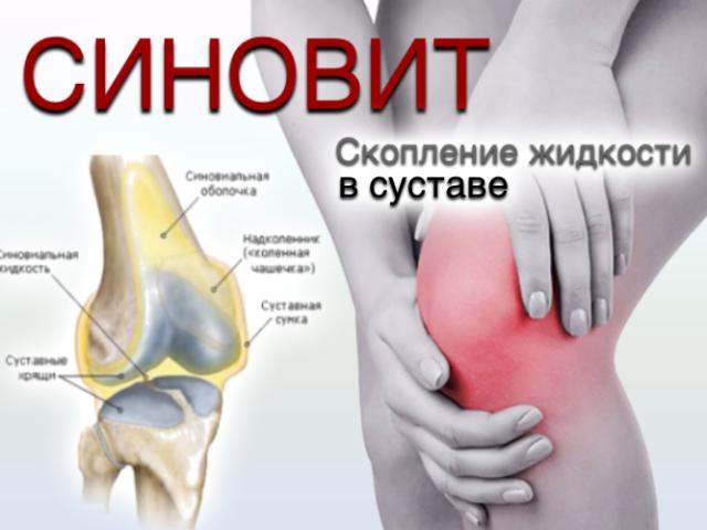 Як боротися з рідиною в колінних суглобах, чому в колінах з'являється зайва рідина, як позбавитися від рідини в суглобах: медикаментозні методи і рецепти народної медицини