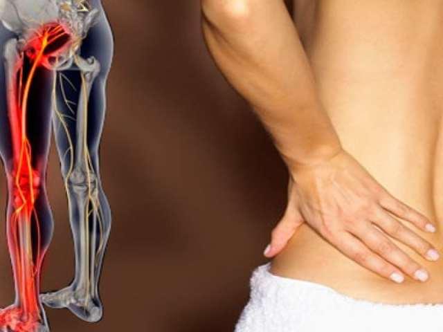 Защемлення нерва в тазостегновому суглобі: причини, симптоми, діагностика, комплексні методи лікування. Застосування альтернативних методів лікування при защемленні нерва в тазостегновому суглобі. Виняток виникнення защемлення нерва в тазостегновому сугло