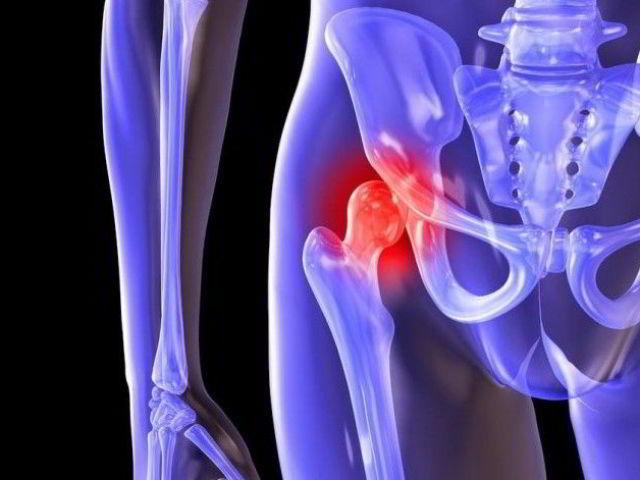 Деформуючий артроз кульшового суглоба: симптоми, зміни в суглобі, причини появи, діагностика, медикаментозне лікування, вправи лікувальної гімнастики для пацієнтів першої та другої групи