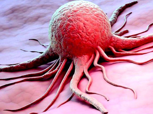 Як визначити рак по загальному аналізі крові, біохімічному, на онкомаркери? Що може спровокувати рак, які зовнішні ознаки раку? Що таке онкомаркери?