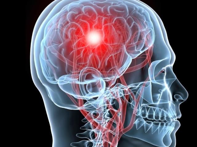 Аневризма судин головного мозку: причини виникнення, симптоми та ознаки, діагностика та лікування захворювання медичним хірургічним шляхом і народними засобами