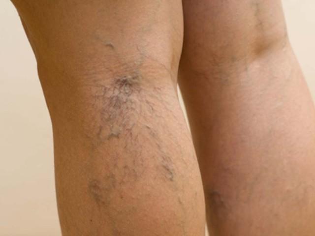 Причини і способи усунення опуклих вен на тілі. Що таке варикоз, як лікувати медикаментозно і народними засобами, профілактика захворювання