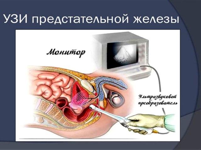 Як робити УЗД передміхурової залози трансректальним і трансабдомінальним способами, для чого УЗД потрібно робити, як до нього підготуватися? В яких випадках лікар призначає УЗД передміхурової залози? Які результати можна дізнатися по УЗД передміхурової за