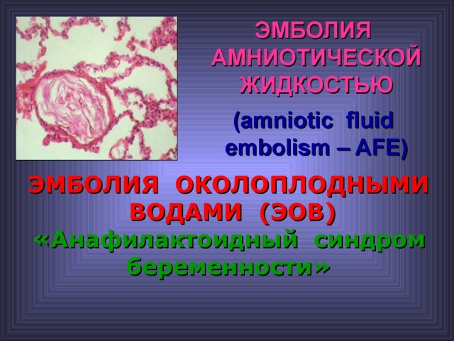 Емболія навколоплідними водами породіллі при кесаревому розтині: причини, лікування, профілактика. Надання невідкладної допомоги жінці при емболії навколоплідними водами