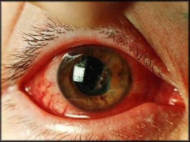 Крововилив в око: причини і лікування. Крововилив в око при глаукомі та цукровому діабеті у дітей, новонароджених: причини і лікування. Небезпечно, коли лопається посудину на оці?