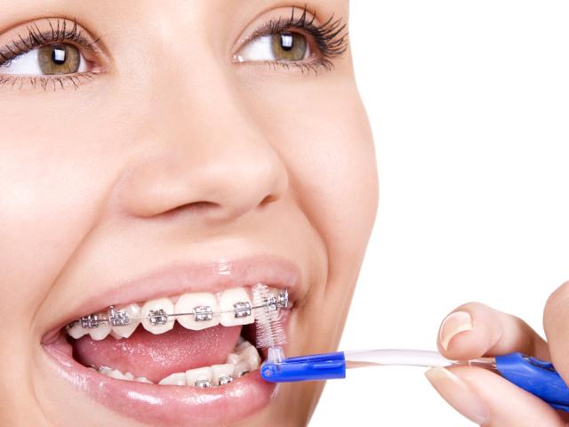 Як правильно чистити зуби з брекетами зубною щіткою дорослим і дітям: поради стоматологів, схема руху зубної щітки, вибір зубної щітки і зубної пасти