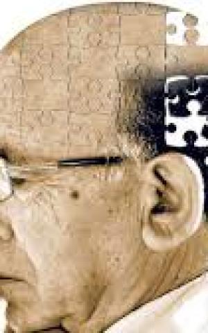 Що таке хвороба Альцгеймера, як починається, скільки живуть, чи передається у спадок? Лікування та профілактика хвороби Альцгеймера у жінок і чоловіків