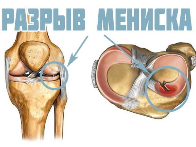 Що таке меніск колінного суглоба? Розрив меніска колінного суглоба: причини, симптоми, лікування