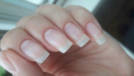 Як відновити нігті після шелаку?