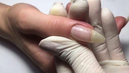 Особливості нарощування зламаного нігтя