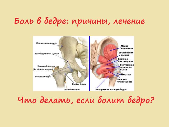 Біль в нозі від стегна і в паху: причини, лікування, який лікар лікує. Чому болить праве і ліве стегно збоку, при ходьбі, до коліна і стопи?