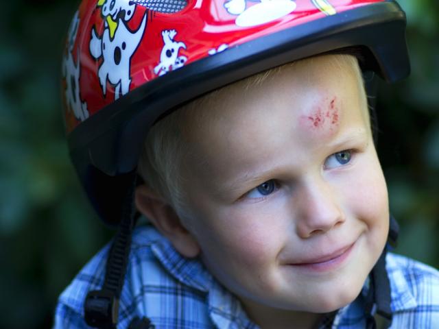 Шишка на лобі у дитини: причини появи, які супутні симптоми повинні насторожити батьків, до якого лікаря звернутися, пам'ятка батькам для профілактики травм голови у дітей, немовлят. Як прибрати шишку на голові у дитини після удару: перша п